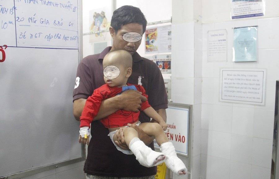 Nhiều trẻ tử vong, nguy kịch vì bỏng do người lớn sơ ý - Ảnh 2.