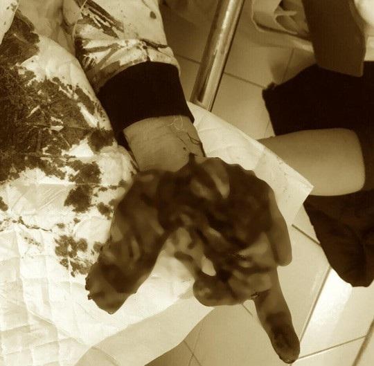 Rùng mình nhìn bàn tay thiếu niên dập nát do nghịch thuốc pháo - Ảnh 1.