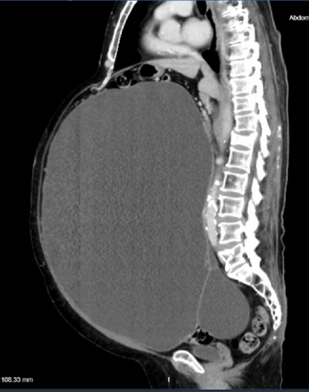 Khối u chiếm gần hết ổ bụng, đẩy lệch nội tạng người bệnh