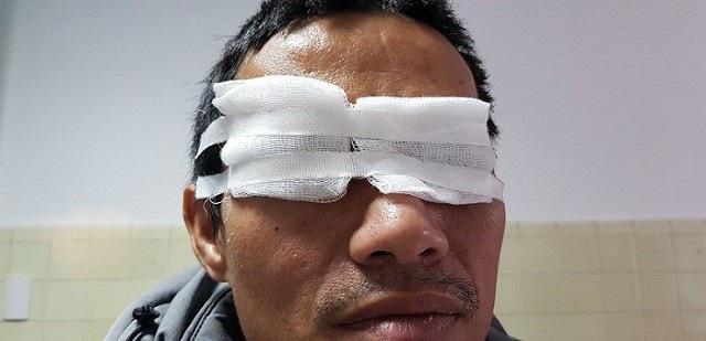 Một nam giới đối mặt với nguy cơ mù mắt phải vì chơi pháo hoa dịp lễ tết  - Ảnh 1.
