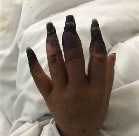 Hậu quả kinh hoàng từ một vết đứt tay trong khi làm việc nhà - Ảnh 2.