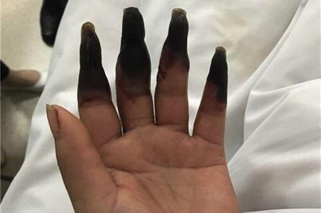 Hậu quả kinh hoàng từ một vết đứt tay trong khi làm việc nhà - Ảnh 1.