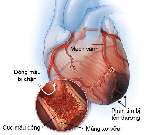 Nguy cơ nhồi máu cơ tim do chủ quan với máu nhiễm mỡ - Ảnh 1.