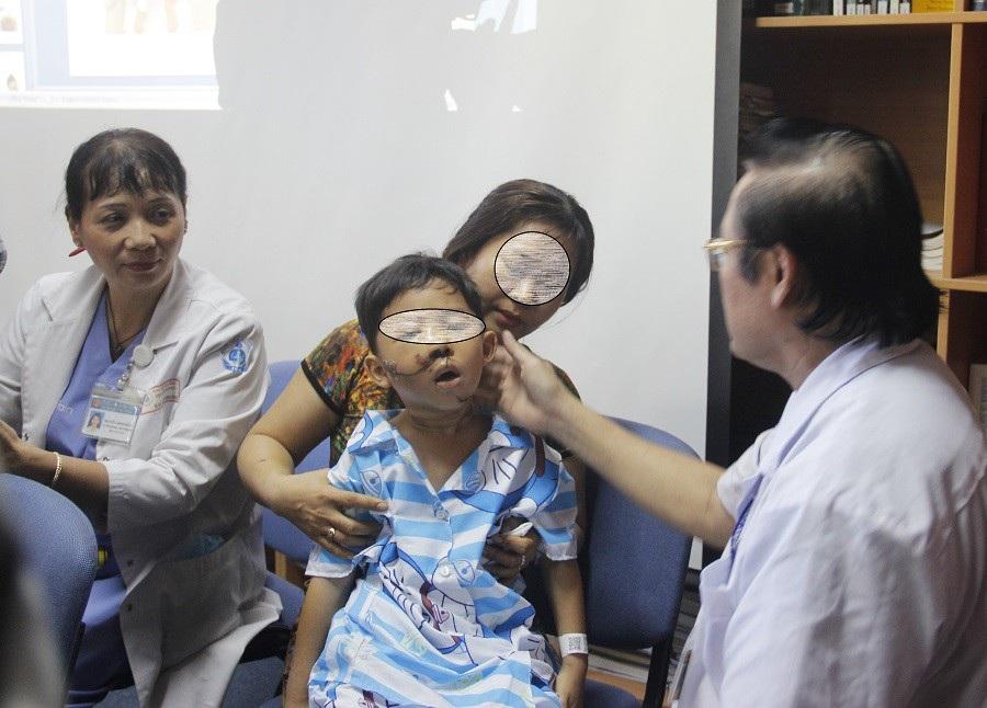 Không được đội nón bảo hiểm, nhiều trẻ bị tai nạn thương tâm - Ảnh 1.