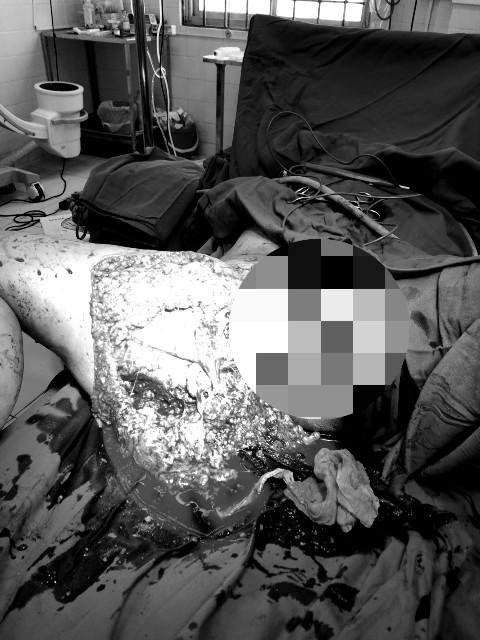 Cô gái bị kéo lê trên đường sau tai nạn được cứu sống nhờ truyền 7 lít máu - Ảnh 1.