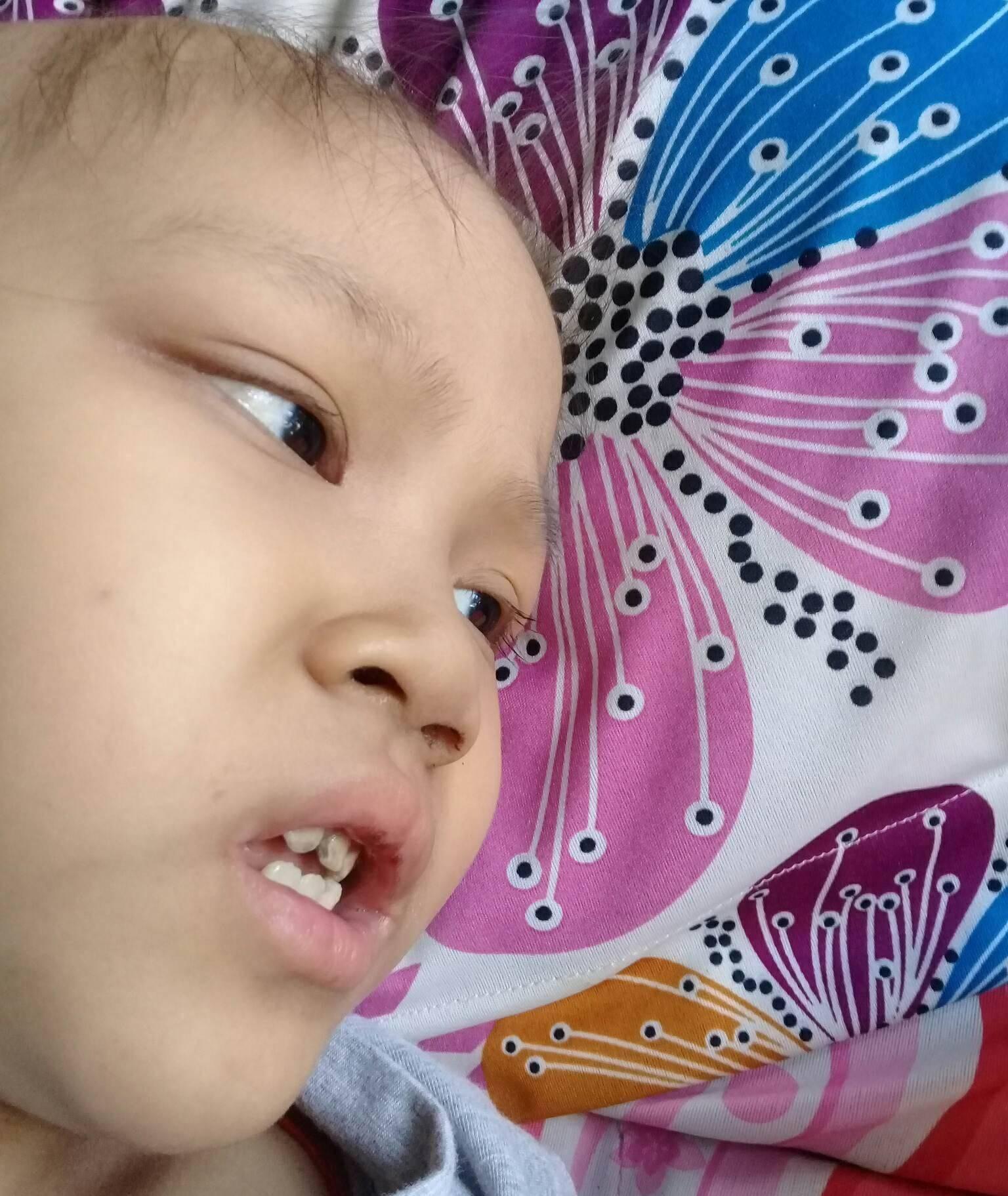 Ước mơ đến trường của cô bé mất 1 chân vì bệnh ung thư - Ảnh 3.
