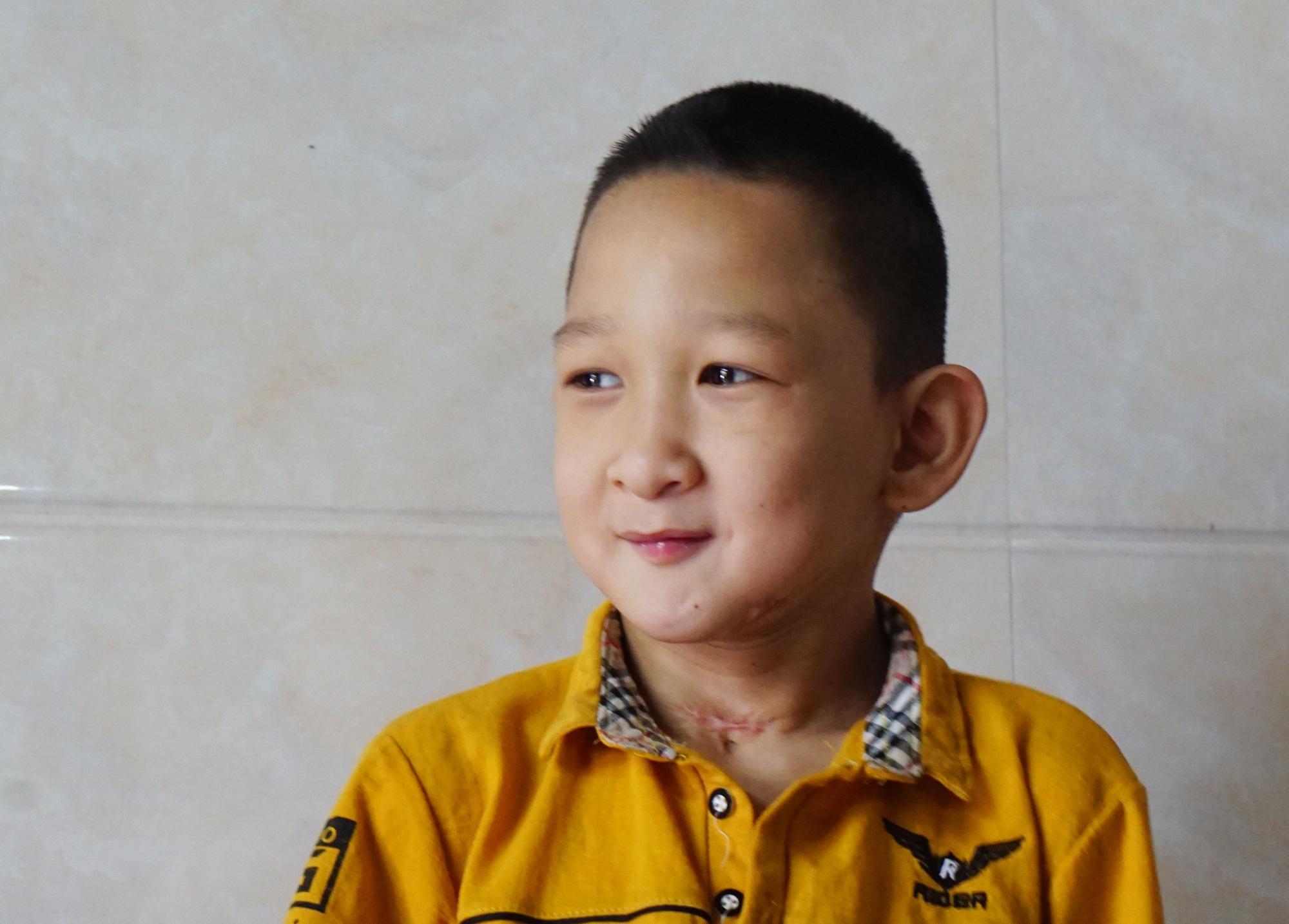 Hành trình hồi sinh đầy gian nan của cậu bé đa dị tật 2 lần bị bỏ rơi - 1