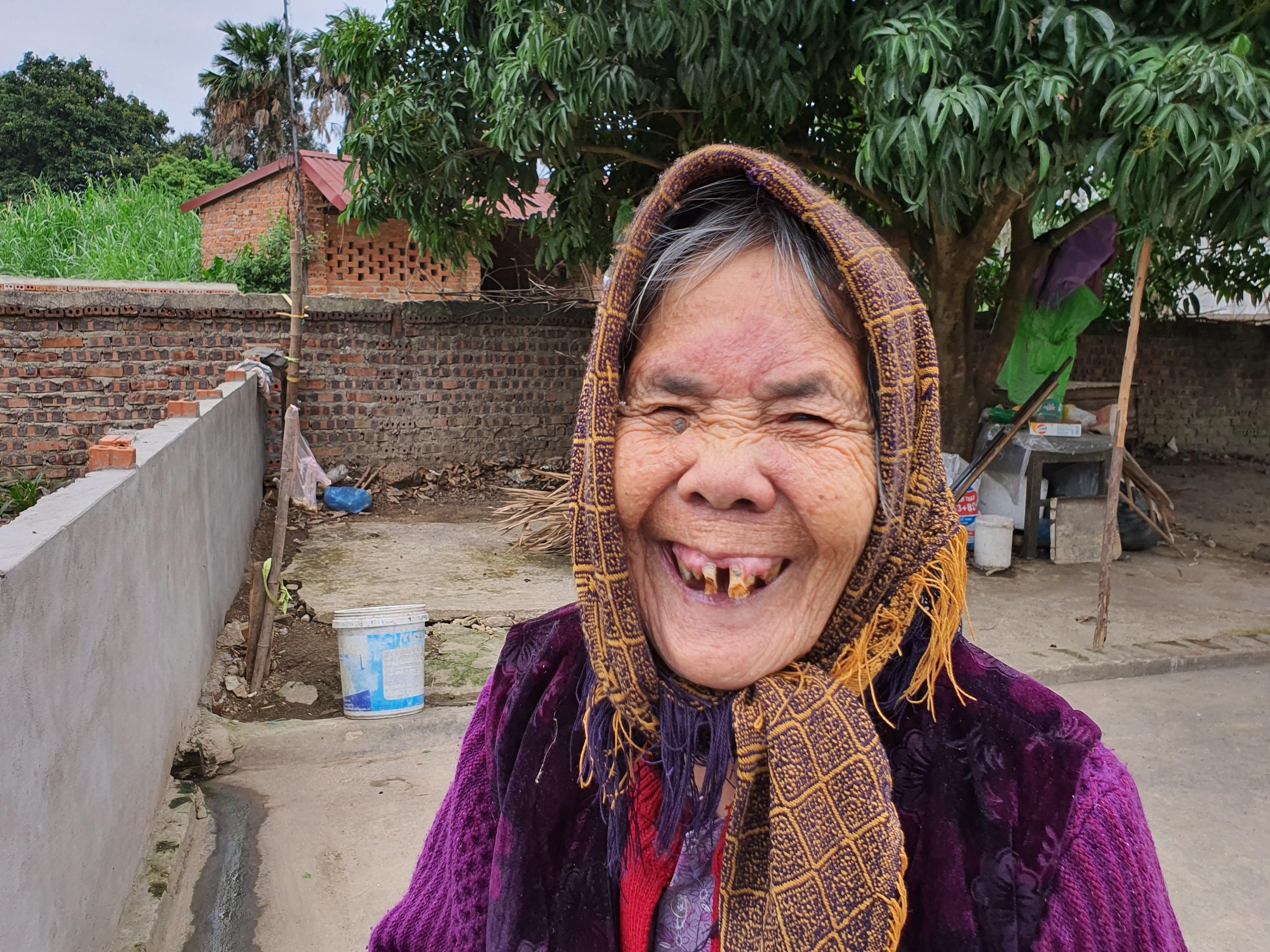 Gặp lại người đàn bà mang hàm răng kì dị suốt nửa thế kỉ - 2