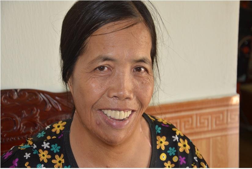 Người đàn bà nửa thế kỉ mang hàm răng kì dị: Tôi nghĩ cuộc đời đã bỏ đi - 4