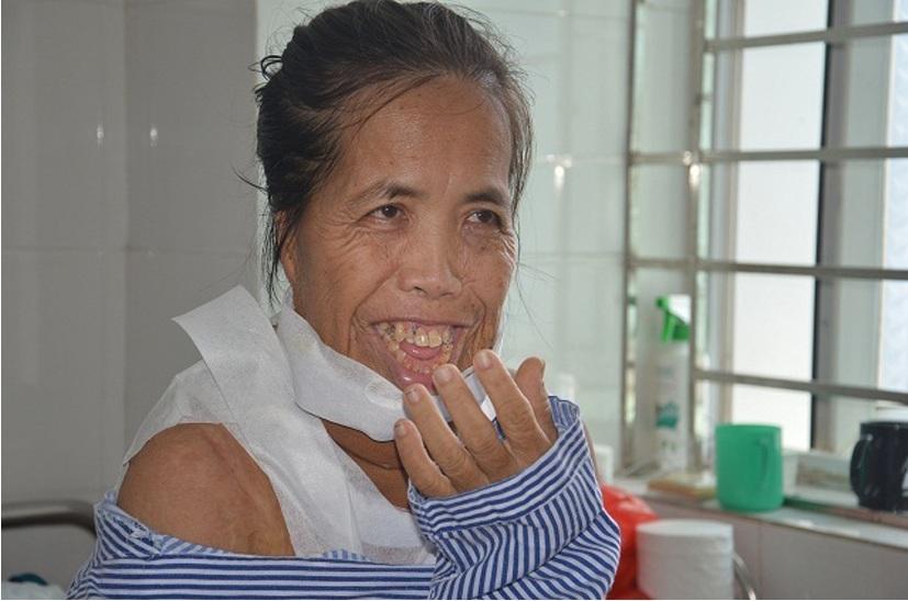 Người đàn bà nửa thế kỉ mang hàm răng kì dị: Tôi nghĩ cuộc đời đã bỏ đi - 11