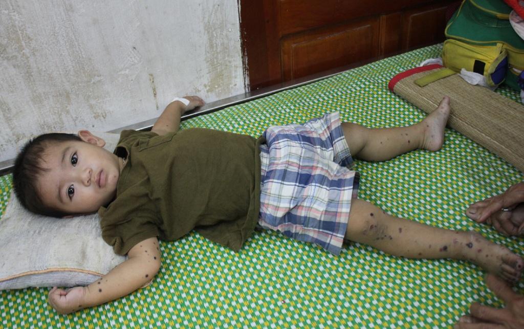 Các bệnh nhân nhập viện trong tình trạng sốt cao liên tục, nổi ban đỏ ở miệng, lòng bàn tay, bàn chân rồi lan lên đùi, lưng.