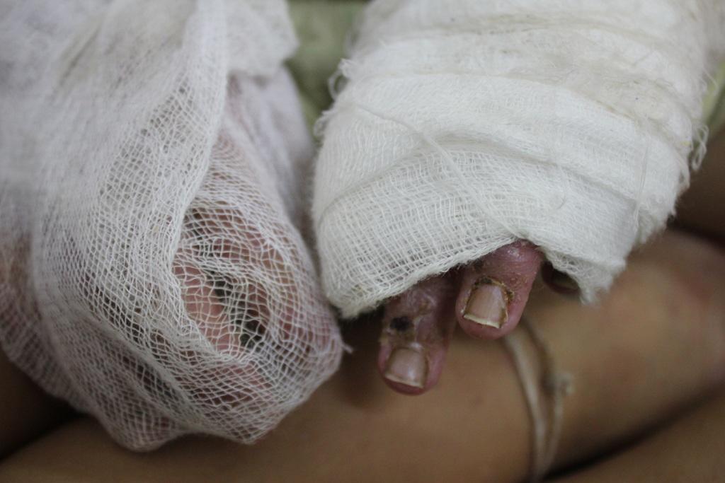 Bàn tay của bé Trương Thị Như Ngọc bị nhiễm trùng, sưng tấy do mẹ bé điều trị cho con không đúng cách khi bé bị tay chân miệng.