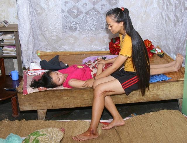 Trong khi cô em gái phải năm một chỗ thì cô chị vẫn đang còn 1 chiếc đinh đóng trong xương đùi do bị tai nạn hồi đầu năm.