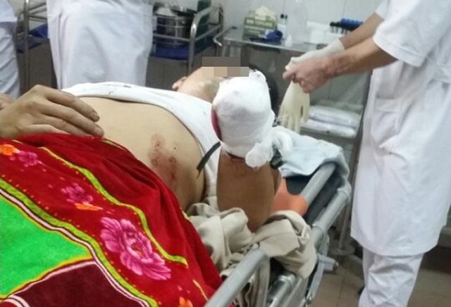 L.V.N được chuyển đến bệnh viện trong tình trạng cánh tay trái bị đứt lìa ngang cổ tay.