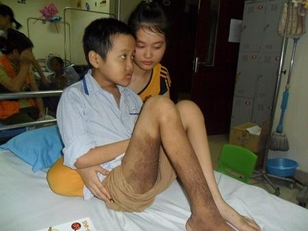 Chân và đùi của em mọc đầy lông, bản thân em còn mắc bệnh tự kỉ.