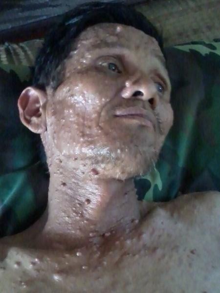 Bố của Đồng bị u thần kinh nhiều năm nay nhưng không có tiền đi viện chữa trị.