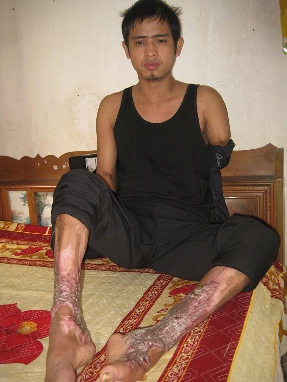 Sau tai nạn bỏng điện cao thế, cơ thể anh Mạnh bị tàn phá ghê gớm.