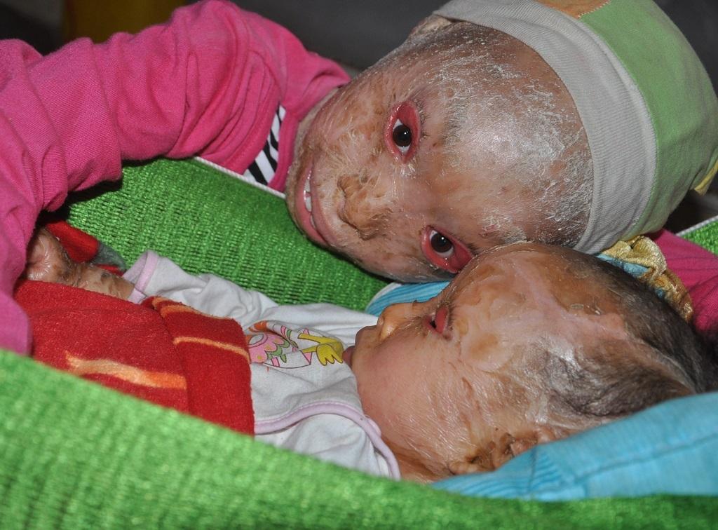 Từ nay hai chị em Thảo - Minh sẽ không còn lo không có tiền mua thuốc.