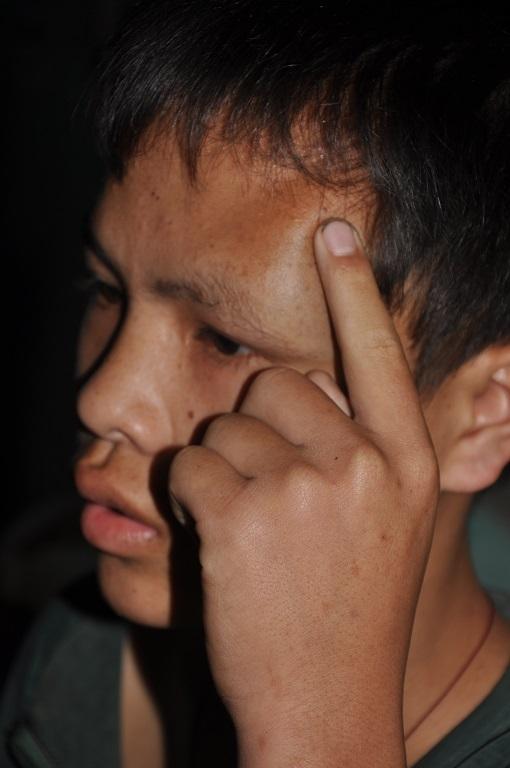 Thằng bé Thiển chỉ khối u máu đang càng ngày càng lớn trên mặt.