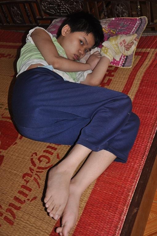 Đã 13 tuổi nhưng Quỳnh không biết gì, chân tay co quắp không đi lại được.