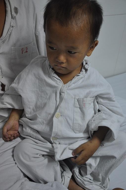 Bé Trông tội nghiệp, đáng thương đến viện khi căn bệnh đã quá nặng.