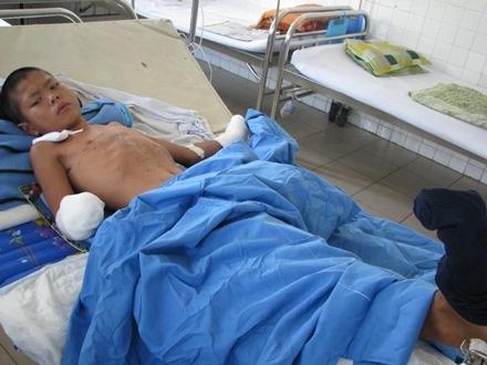 Cháu Hiếu đang được điều trị tại Bệnh viện Đà Nẵng