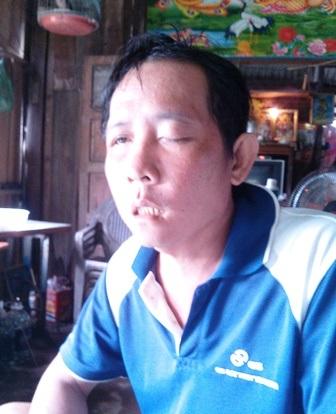 Ông Côn cho rằng bác sĩ không xét nghiệm kỹ nên nhổ răng bị mù mắt
