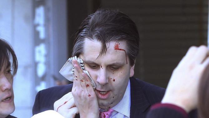 Gương mặt ông Lippert sau khi bị một người đàn ông Hàn Quốc dùng dao tấn công (Ảnh: