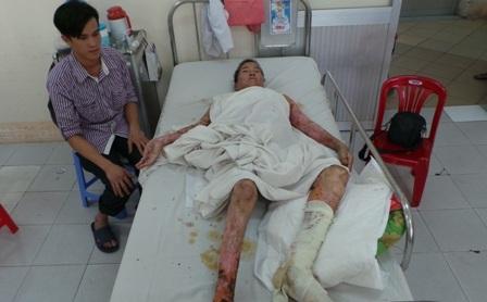Chân trái sẽ phải cắt bỏ nhưng không đủ điều kiện chữa trị sinh mạng bệnh nhân sẽ nguy nan