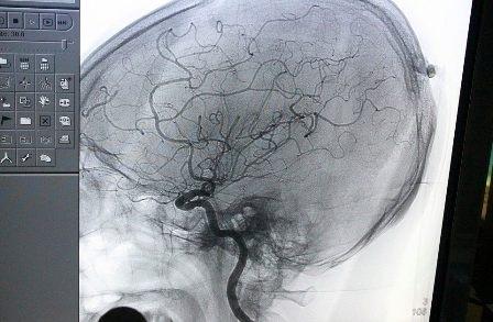 Hình ảnh chụp DSA cho một bệnh nhân bị bệnh lý mạch máu