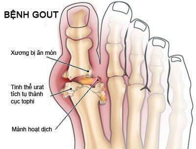 Các dạng đau xương khớp thường gặp - 2