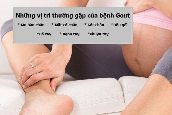 Cảm giác đau nhức khi bị gout luôn thường trực khiến mẹ bầu khó chịu