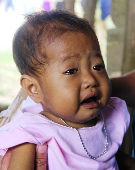 Biểu hiện rất rõ chứng bệnh tắc đường mật trên thân thể bé Hoài Nhi khi ngoài da thì củng mạc mắt bé cũng bị vàng, nước mắt chảy thường xuyên.