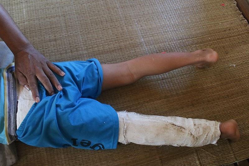 Dù rất hiếu động nhưng Phú không thể rời khỏi chiếc giường vì từ bụng tới chân cháu đều phải băng bó.