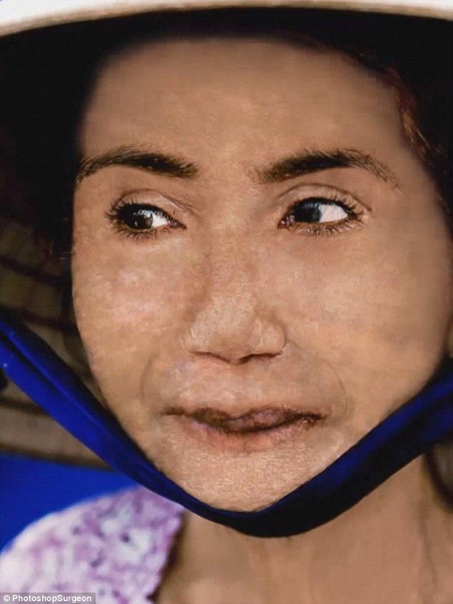 Ở những bước cuối cùng, PhotoshopSurgeon tập trung vào phần trán của bà cụ.
