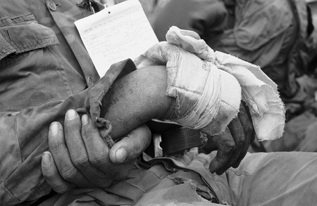 Đôi tay thương tích của quân nhân.
