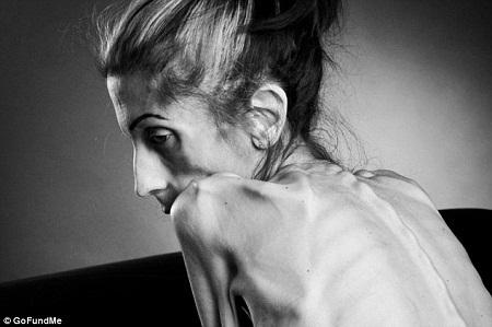 Trong hơn 10 năm qua, Rachael đã phải chiến đấu với căn bệnh chán ăn kinh niên.