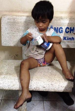 Mọi món ăn, thức uống của những đứa trẻ bình thường khác, với cháu Đức dường như đều xa lạ...