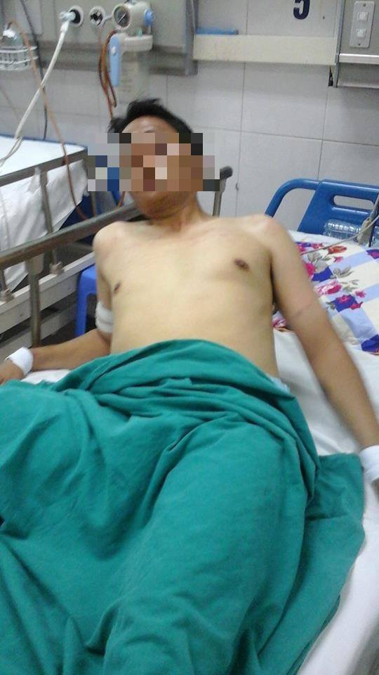 Một bệnh nhân mắc hội chứng cai, phải buộc tay vào giường bệnh tại khoa Cấp cứu, BV Bệnh Nhiệt đới.