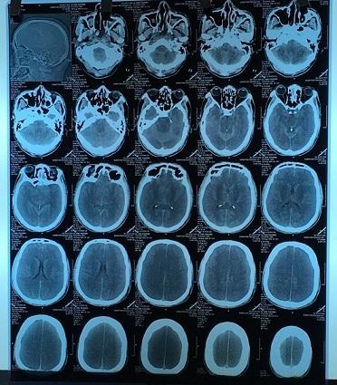 Hình ảnh não bệnh nhân bị tổn thương.