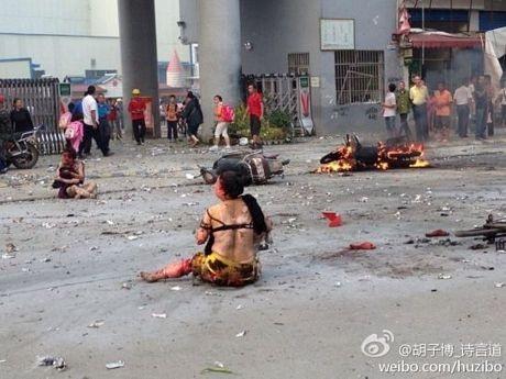 Vụ nổ khiến nhiều trẻ em bị thương nặng