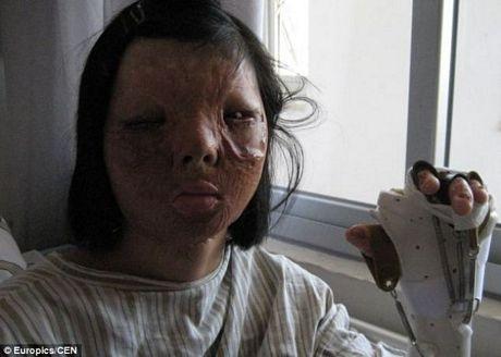 Xu Jainmei khi chưa phẫu thuật.