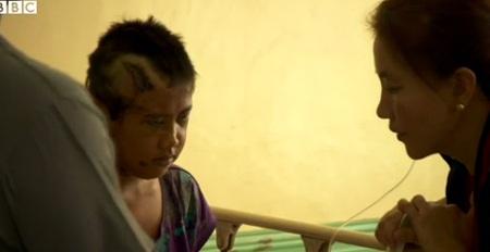 Bé gái Rebecca đang được điều trị trong bệnh viện.
