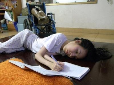Cô gái xương thủy tinh Nguyễn Thị Nguyện