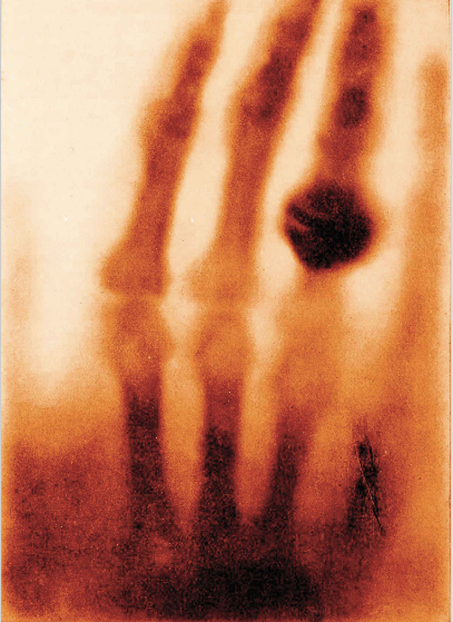 """Bức ảnh """"Bàn tay của bà Wilhelm Röntgen"""" do nhà vật lý người Đức Wilhelm Conrad Röntgen chụp vào năm 1895. Đây là bức ảnh chụp bằng tia X quang đầu tiên trên thế giới.Ông Wilhelm là người đầu tiên phát hiện ra tia X sau khi dành nhiều tuần nghiên cứu trong phòng thí nghiệm về một loại bức xạ đặc biệt. Sau đó để kiểm chứng cho giả thuyết mới của mình, ông đã chụp bàn tay của chính vợ mình trong bức ảnh chụp bằng tia X đầu tiên. Phần hình tròn màu đen trong bức ảnh là chiếc nhẫn của bàWilhelm Röntgen. Sau đó, nhờ những cống hiến của mình, ông Wilhelm Conrad Röntgen đã được trao giải Nobel Vật lý đầu tiên vào năm 1901."""