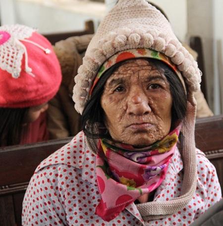 ... hay như cụ bà này bị nổi u đầy mặt có mặt tại buổi trao quà đã làm xúc động mọi người.