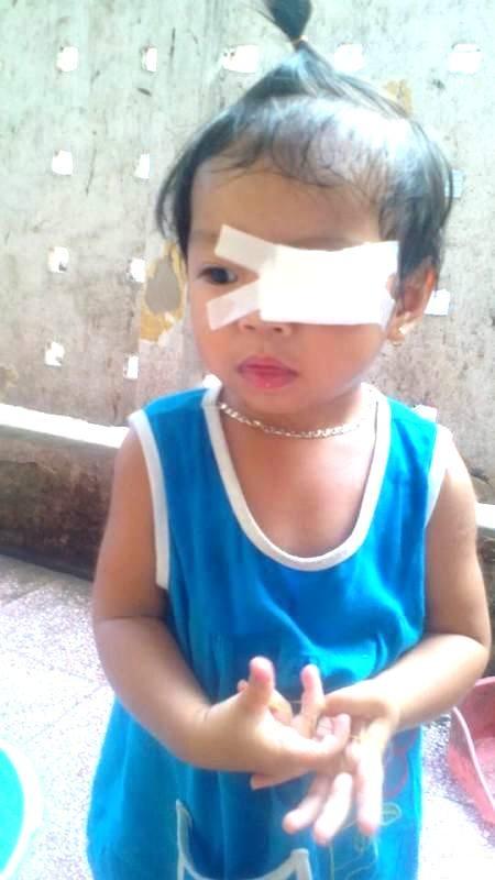 Bé Nguyễn Lê An Mi lúc mới mổ mắt ở Bệnh viện mắt Trung ương. Tuy