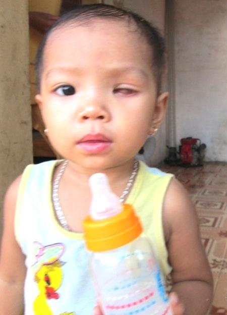 Hiện bé An Mi đã được múc một mắt, tuy nhiên còn điều trị dài lâu hơn 5 năm nữa...
