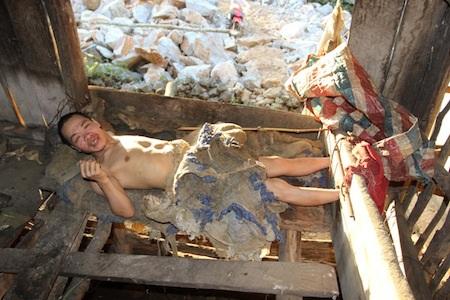 Một người điên ở huyện Hà Quảng, được nuôi nhốt tại nhà.