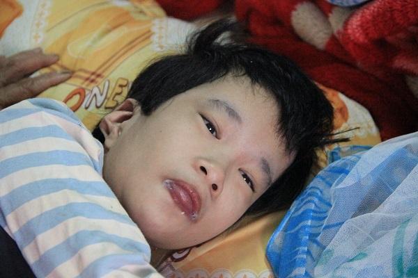 Bé Ngân bị mắc chứng bại não từ khi mới lọt lòng mẹ